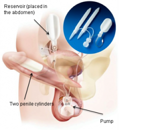 penile implant for erectile dysfunction
